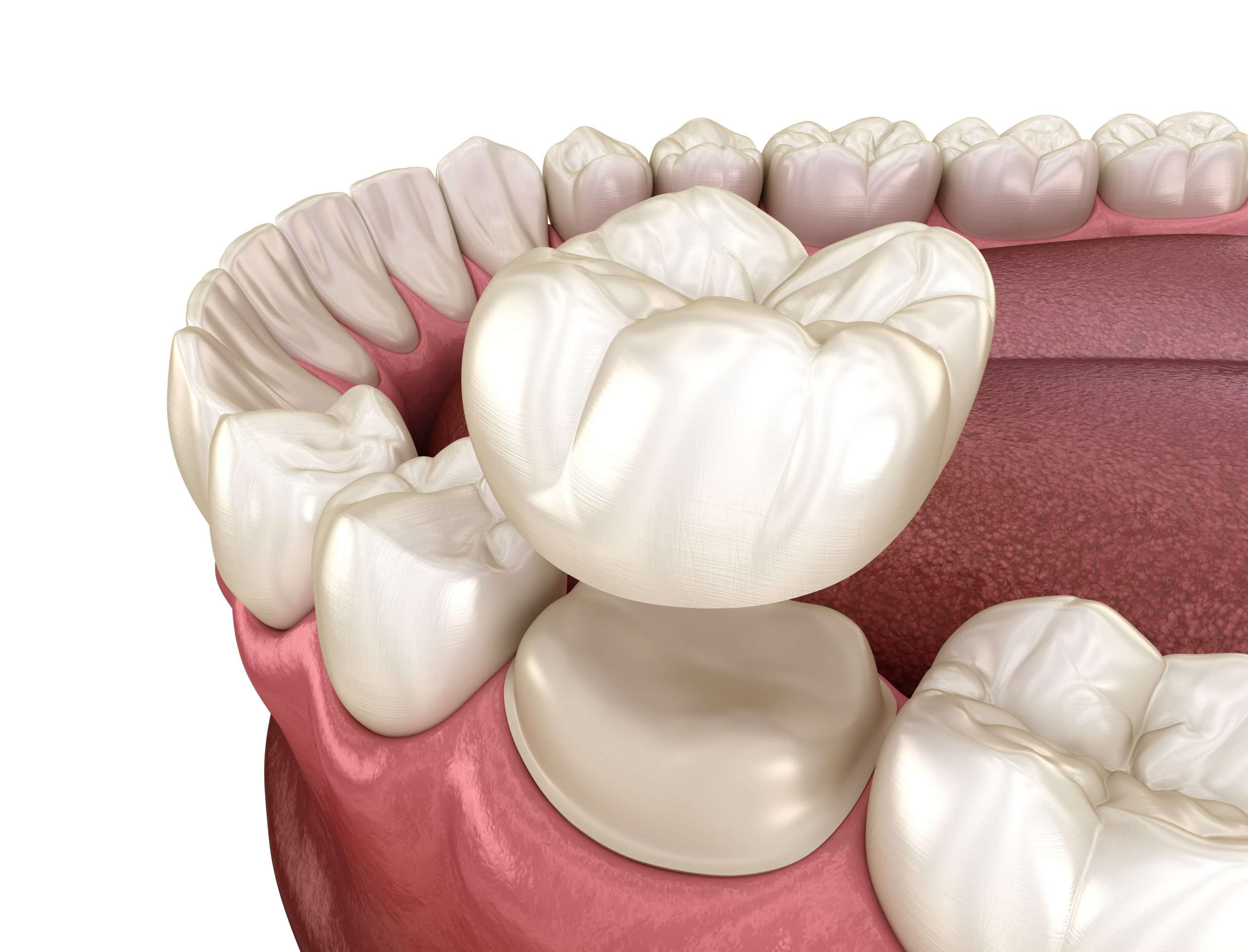 dental-crown-merrylands-guildford