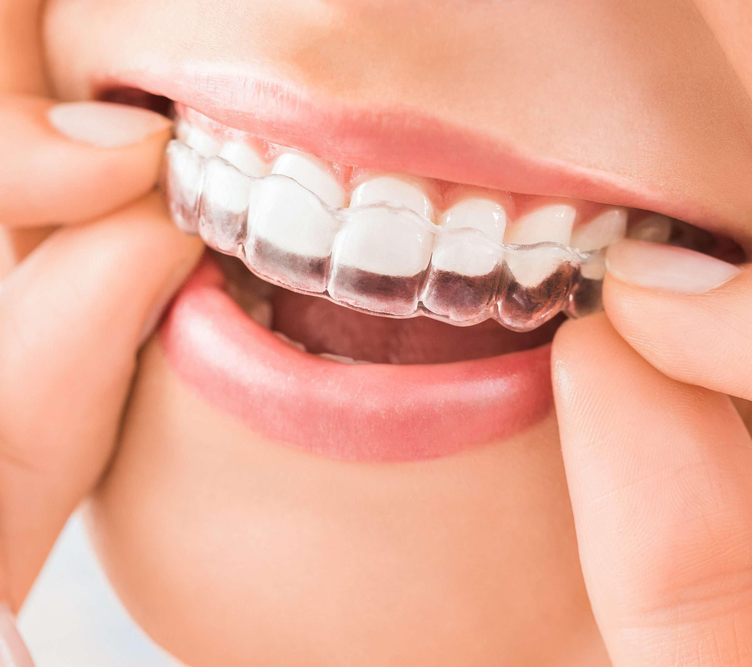 invisalign-dental-merrylands-thumbnail