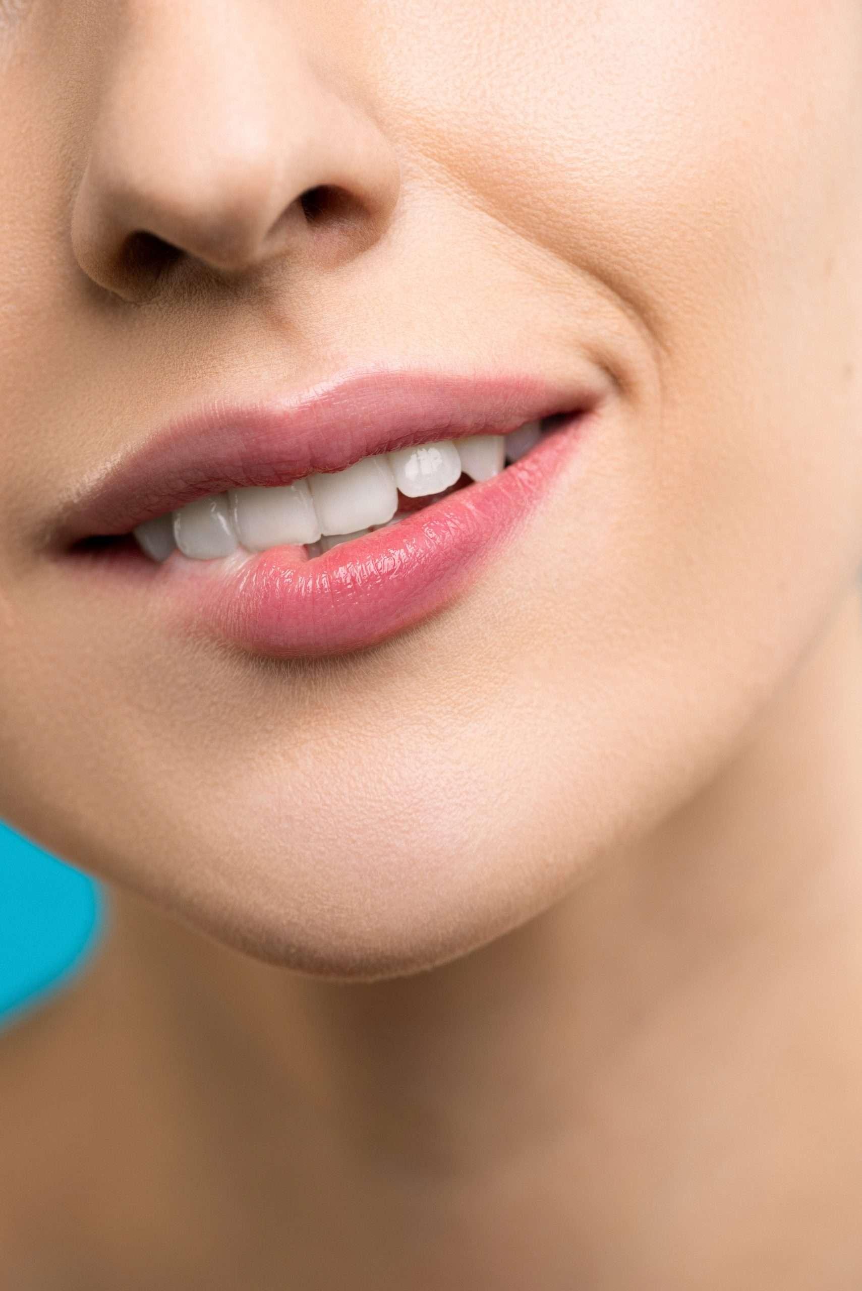 smile-dental-veneers-merrylands-guildford