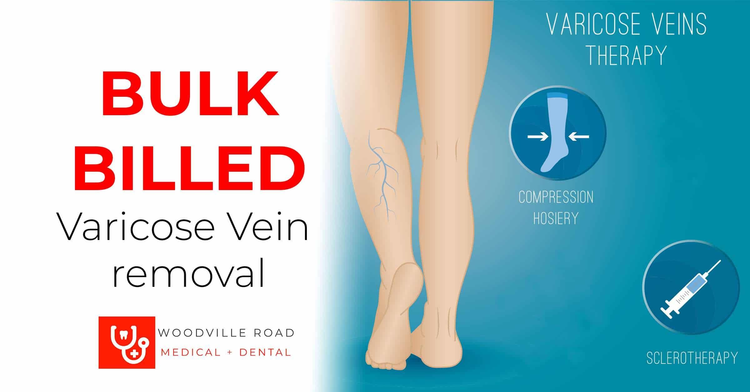 Varicose vein bulk billed removal